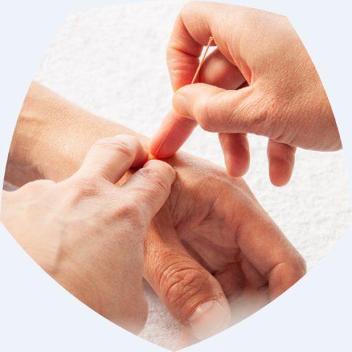 Acupunctuur bij Praktijk Elementz